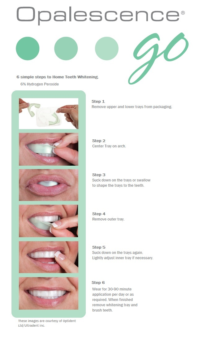 New Home Whitening Products Launched Ashford Dental