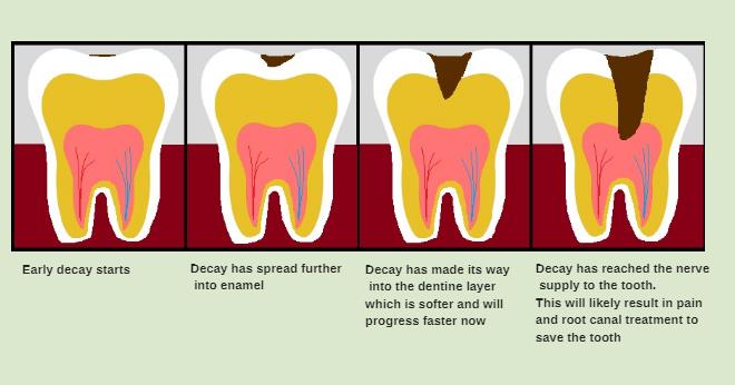 Tooth decay a quick explanation ashford dental progression of tooth decayg ccuart Gallery