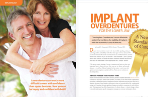 Implant Overdentures - Dear Doctor Magazine