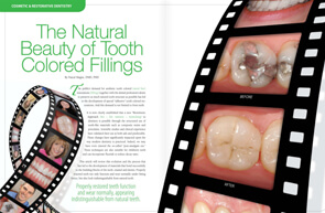 Tooth Colored Fillings - Dear Doctor Magazine